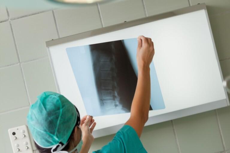 Regionen ska säkra upp röntgensjuksköterskor