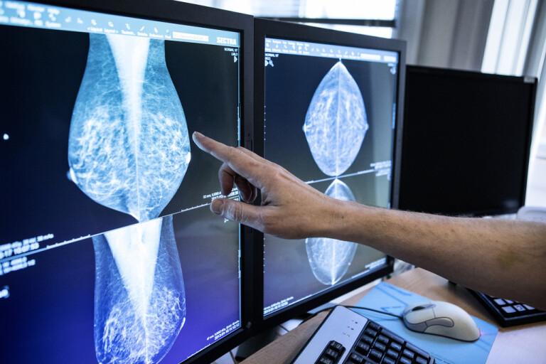 Mammografiscreening pausades i flera regioner under våren som en konsekvens av coronapandemin. Arkivbild.