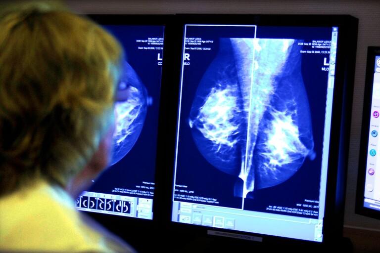 Regionen satsar på mammografin