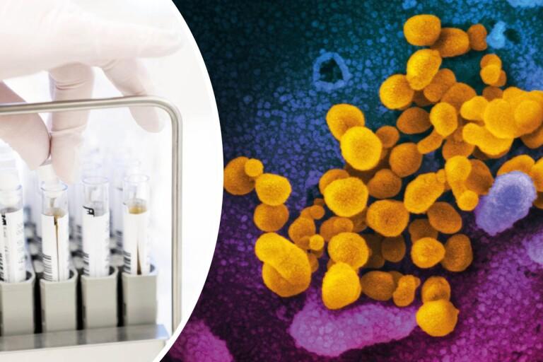 LIVE: Så slår coronaviruset mot länet – läget just nu