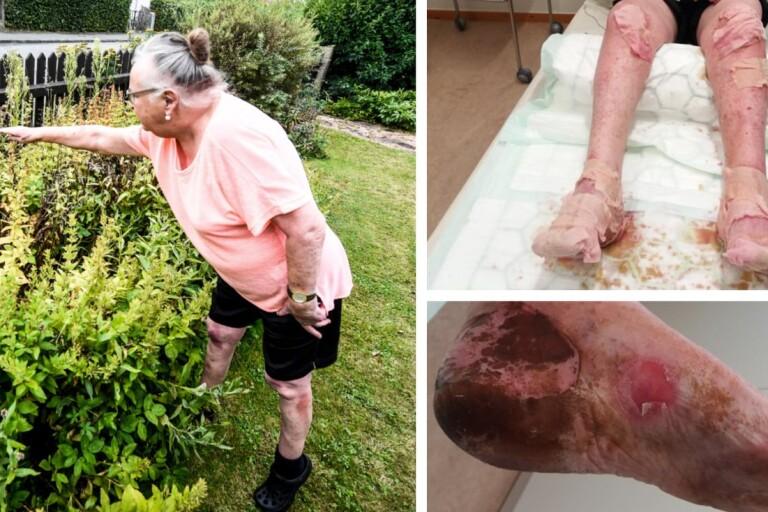 """Gunnel skadades svårt av björnloka: """"Helt fruktansvärt"""""""