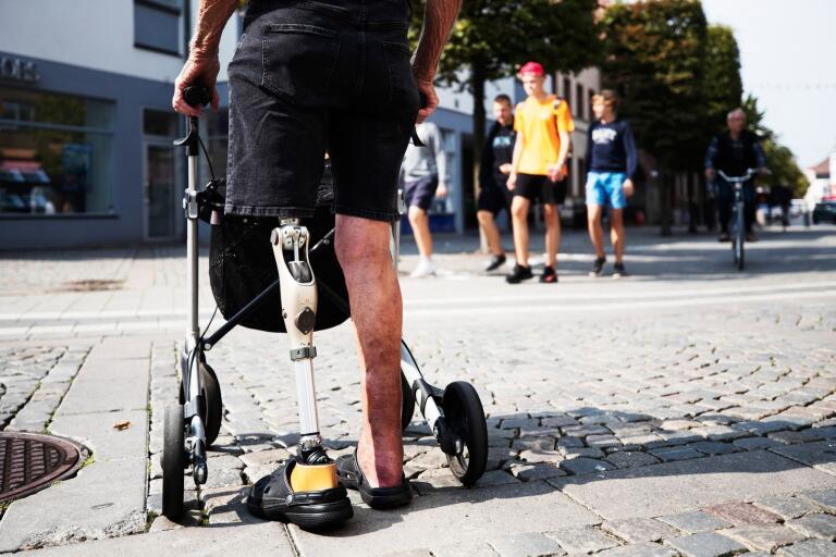 Lena Edenhög har problem att förflytta sig i stadsmiljö med sin protes. När hon går får hon ofta andnöd och smärta i benet. Trots det vill inte kommunen förnya hennes parkeringstillstånd för rörelsehindrade.